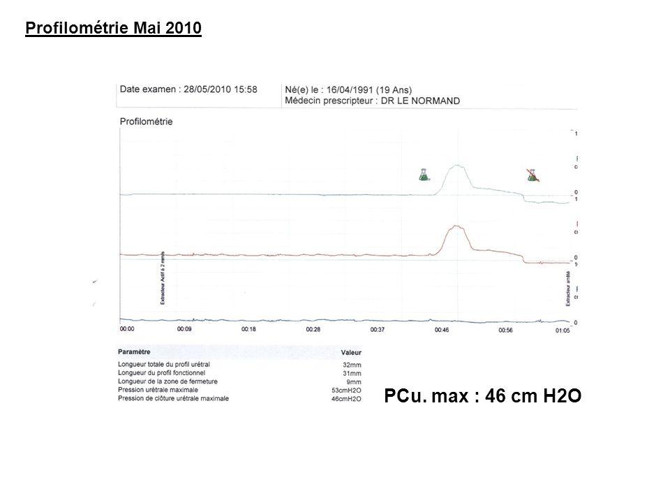 PCu. max : 46 cm H2O Profilométrie Mai 2010