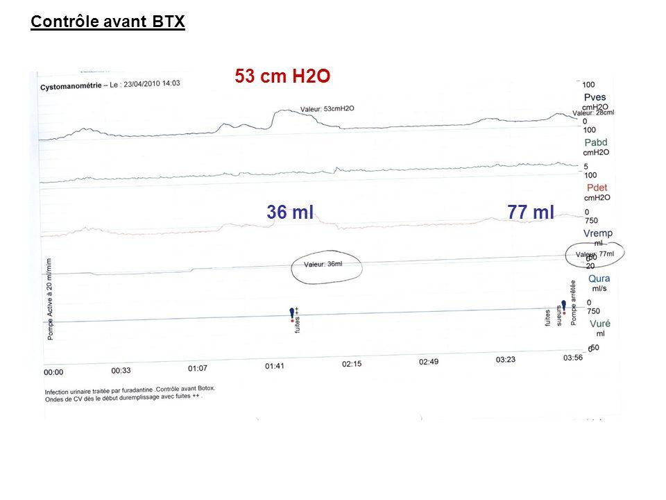 100 ml 32 cm H2O Contrôle 1 mois après BTX