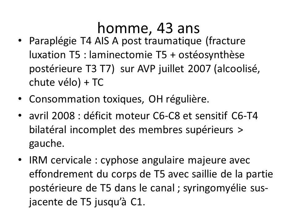 homme, 43 ans Paraplégie T4 AIS A post traumatique (fracture luxation T5 : laminectomie T5 + ostéosynthèse postérieure T3 T7) sur AVP juillet 2007 (al