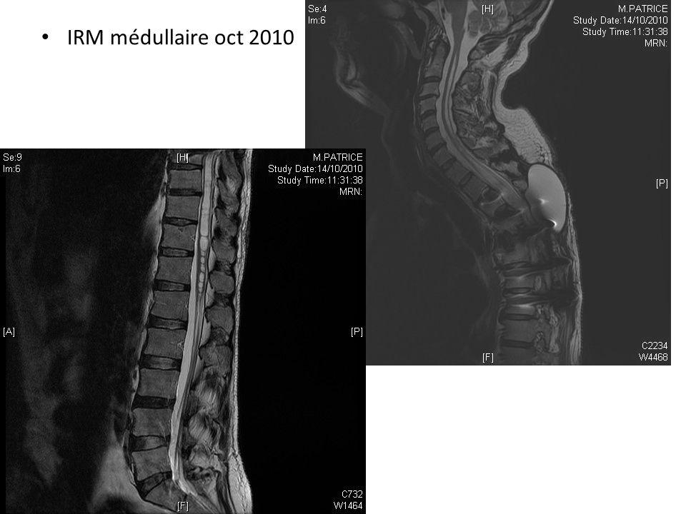 Partie cervicale et thoracique haute de la cavité moins dilatée 95 % de la s² de la section médullaire dorsale inférieur collection de LCR en arrière de la laminectomie
