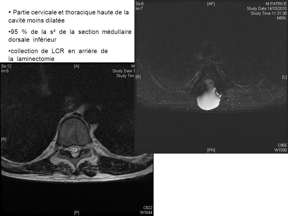 Partie cervicale et thoracique haute de la cavité moins dilatée 95 % de la s² de la section médullaire dorsale inférieur collection de LCR en arrière