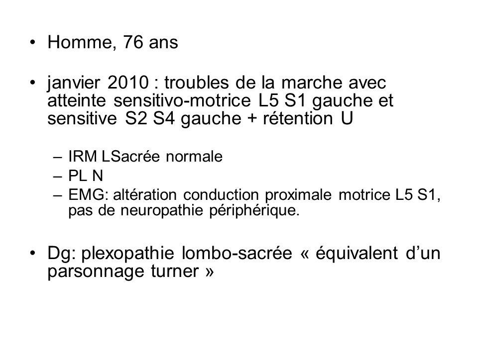 Homme, 76 ans janvier 2010 : troubles de la marche avec atteinte sensitivo-motrice L5 S1 gauche et sensitive S2 S4 gauche + rétention U –IRM LSacrée n