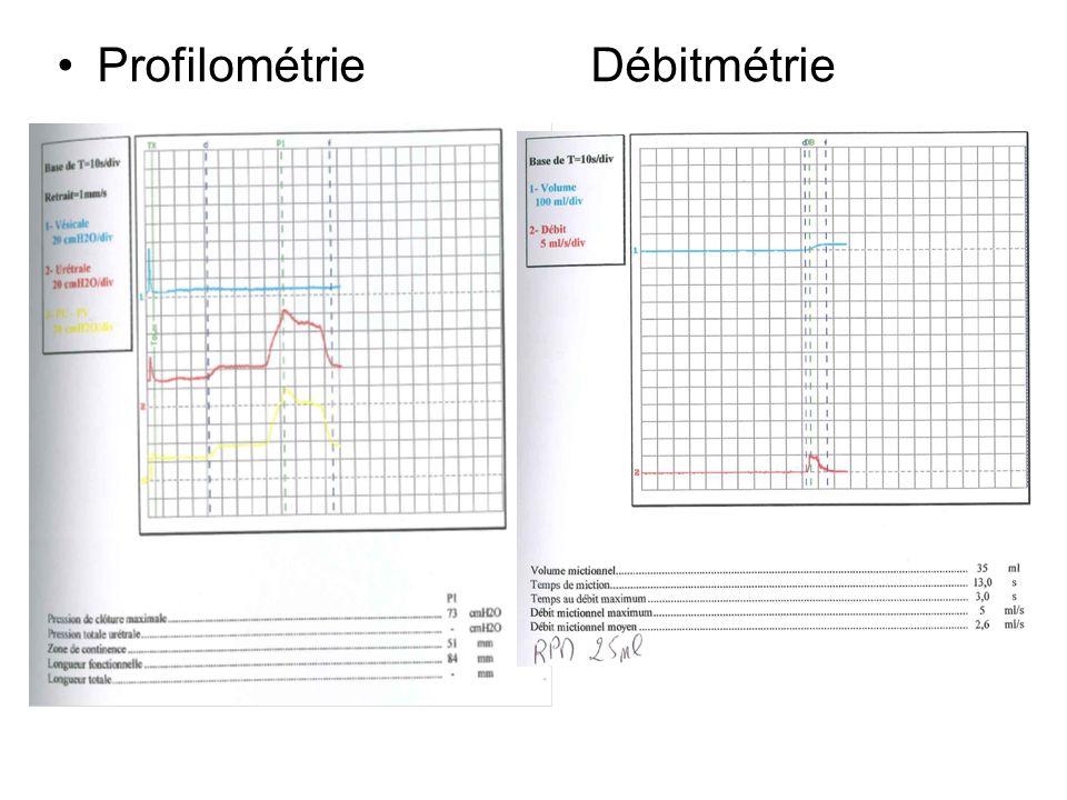 EMG périnéal: LRBC D 30 ms; G 37ms Problème diagnostique: –rétention U incomplète avec RPM 50-200ml sans obstable urologique en endoscopie.