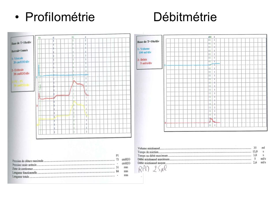 ProfilométrieDébitmétrie