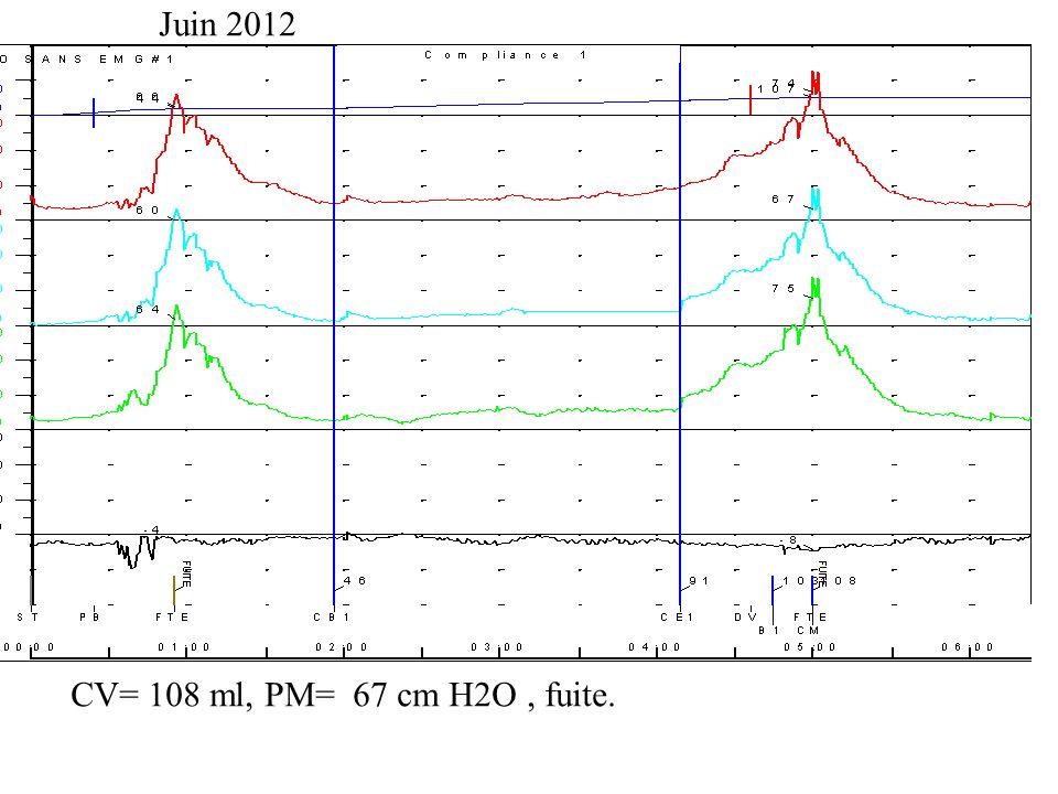 CV= 108 ml, PM= 67 cm H2O, fuite. Juin 2012