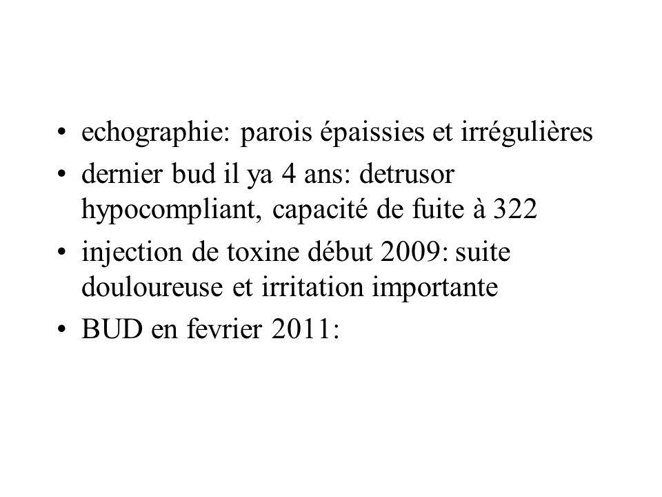 echographie: parois épaissies et irrégulières dernier bud il ya 4 ans: detrusor hypocompliant, capacité de fuite à 322 injection de toxine début 2009: