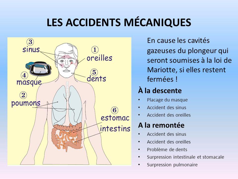 LES ACCIDENTS MÉCANIQUES En cause les cavités gazeuses du plongeur qui seront soumises à la loi de Mariotte, si elles restent fermées ! À la descente