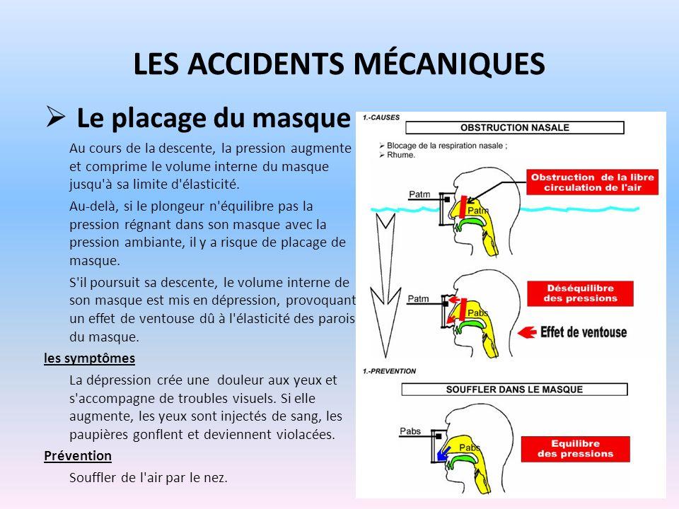LES ACCIDENTS MÉCANIQUES Le placage du masque Au cours de la descente, la pression augmente et comprime le volume interne du masque jusqu'à sa limite