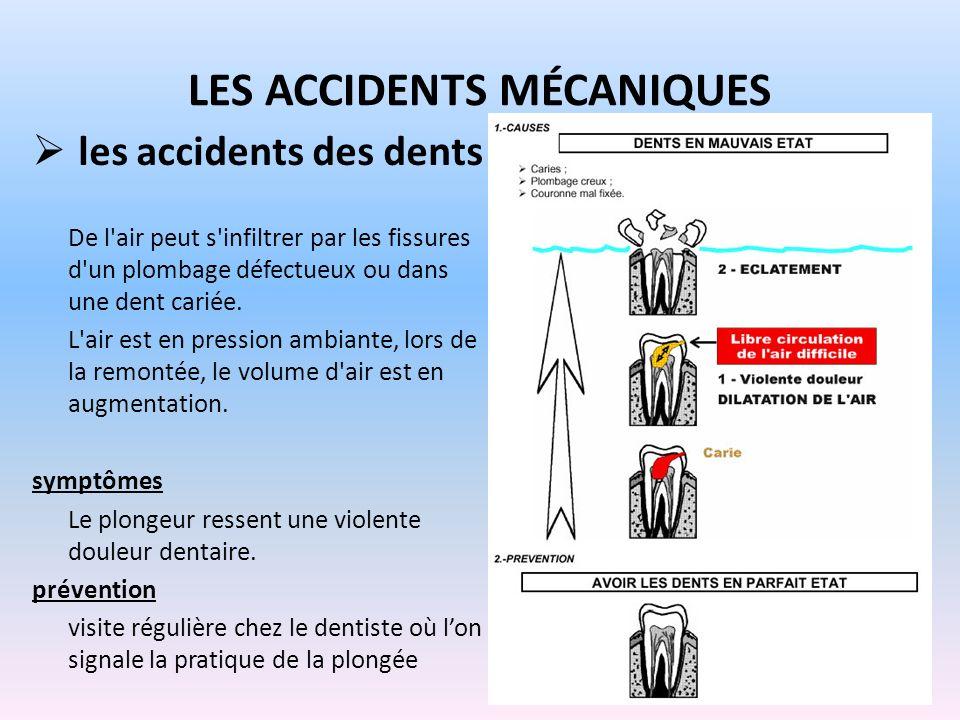 LES ACCIDENTS MÉCANIQUES les accidents des dents De l'air peut s'infiltrer par les fissures d'un plombage défectueux ou dans une dent cariée. L'air es
