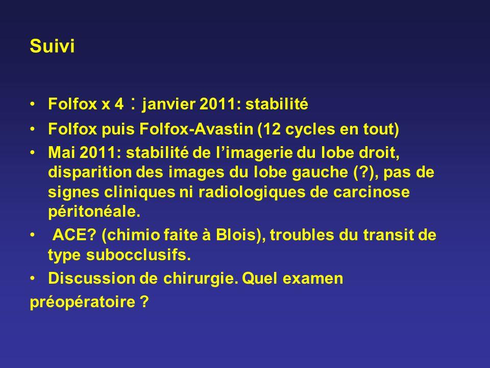 Suivi Folfox x 4 : janvier 2011: stabilité Folfox puis Folfox-Avastin (12 cycles en tout) Mai 2011: stabilité de limagerie du lobe droit, disparition