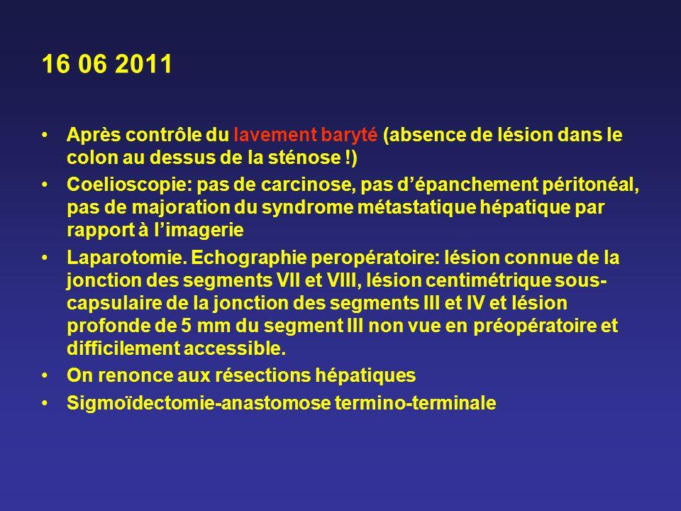 16 06 2011 Après contrôle du lavement baryté (absence de lésion dans le colon au dessus de la sténose !) Coelioscopie: pas de carcinose, pas dépanchem
