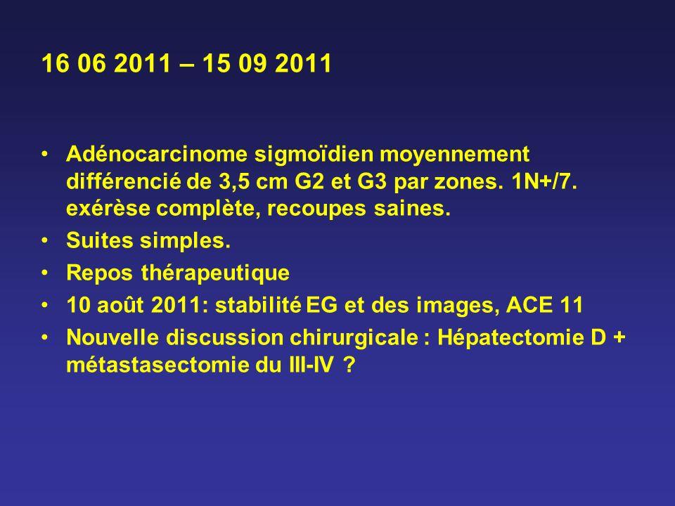 16 06 2011 – 15 09 2011 Adénocarcinome sigmoïdien moyennement différencié de 3,5 cm G2 et G3 par zones. 1N+/7. exérèse complète, recoupes saines. Suit