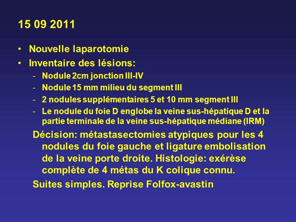 15 09 2011 Nouvelle laparotomie Inventaire des lésions: -Nodule 2cm jonction III-IV -Nodule 15 mm milieu du segment III -2 nodules supplémentaires 5 e