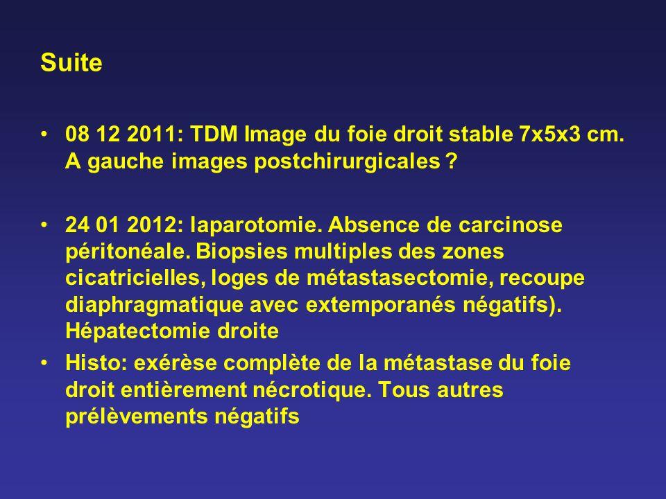 Suite 08 12 2011: TDM Image du foie droit stable 7x5x3 cm. A gauche images postchirurgicales ? 24 01 2012: laparotomie. Absence de carcinose péritonéa