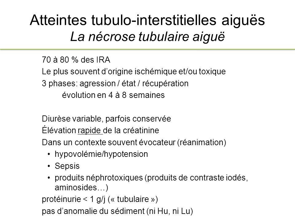 Atteintes tubulo-interstitielles aiguës La Néphrite Interstitielle Aiguë - IRA non oligo-anurique, sans signe de rétention hydrosodée - Lombalgies bilatérales - Augmentation de taille des reins en imagerie - Leucocyturie stérile Protéinurie < 1g/j (type tubulaire en électrophorèse) Contexte - Manifestations extrarénales (mécanisme immuno-allergique) fièvre, rash, athralgies - Éosinophilie/eosinophilurie - qq j à qq semaines après la prise de médicament suspect