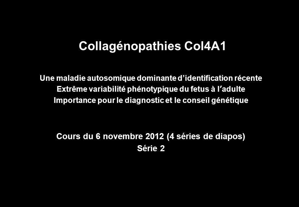 Collagénopathies Col4A1 Une maladie autosomique dominante didentification récente Extrême variabilité phénotypique du fetus à ladulte Importance pour