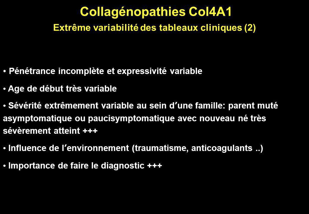 Collagénopathies Col4A1 Extrême variabilité des tableaux cliniques (2) Pénétrance incomplète et expressivité variable Age de début très variable Sévér