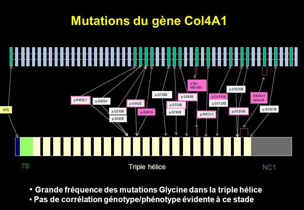 p.G1118S p.G1254E p.G805R p.G755R p.G720D Mutations du gène Col4A1 IVS46+1 delex46 p.Del 906-908 p.G749S p.G1130D p.G1236R p.G1423R p.G601S p.IVS35-1
