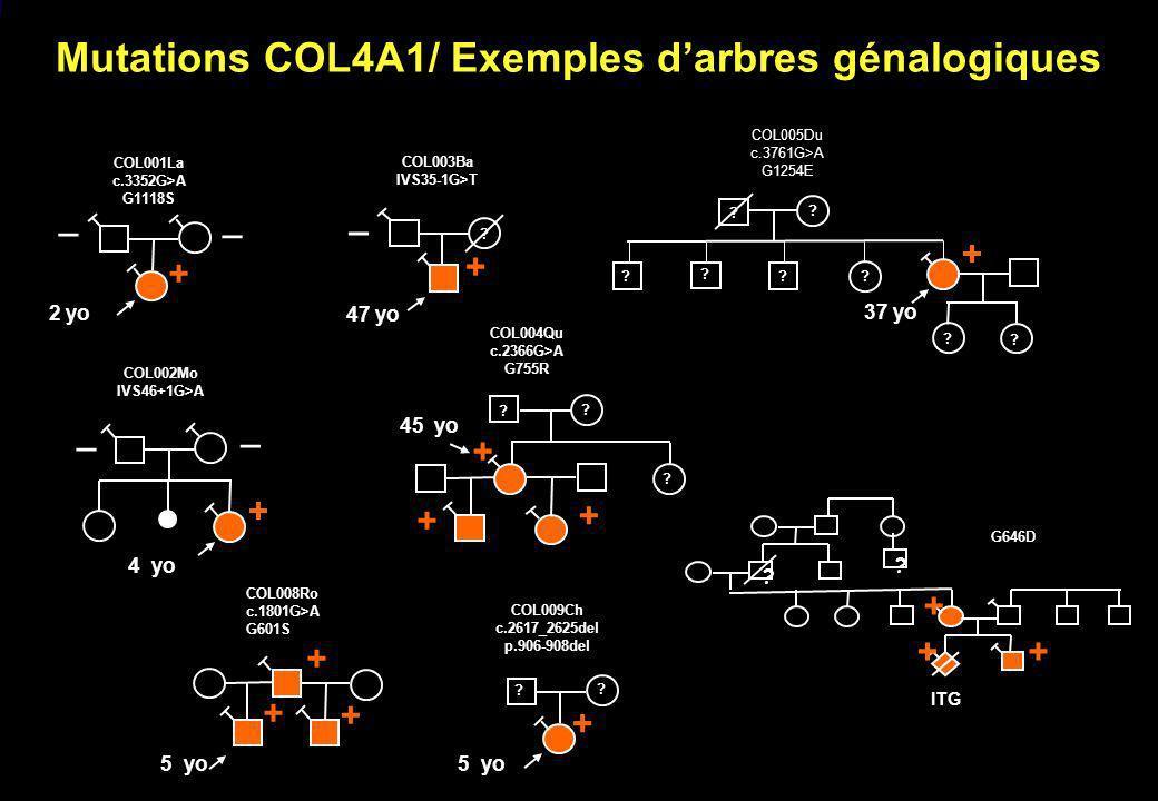 Mutations COL4A1/ Exemples darbres génalogiques