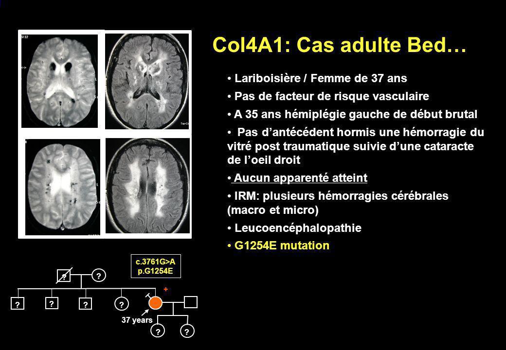 Col4A1: Cas adulte Bed… c.3761G>A p.G1254E ? ? ? ? ? ? ? ? + 37 years Lariboisière / Femme de 37 ans Pas de facteur de risque vasculaire A 35 ans hémi