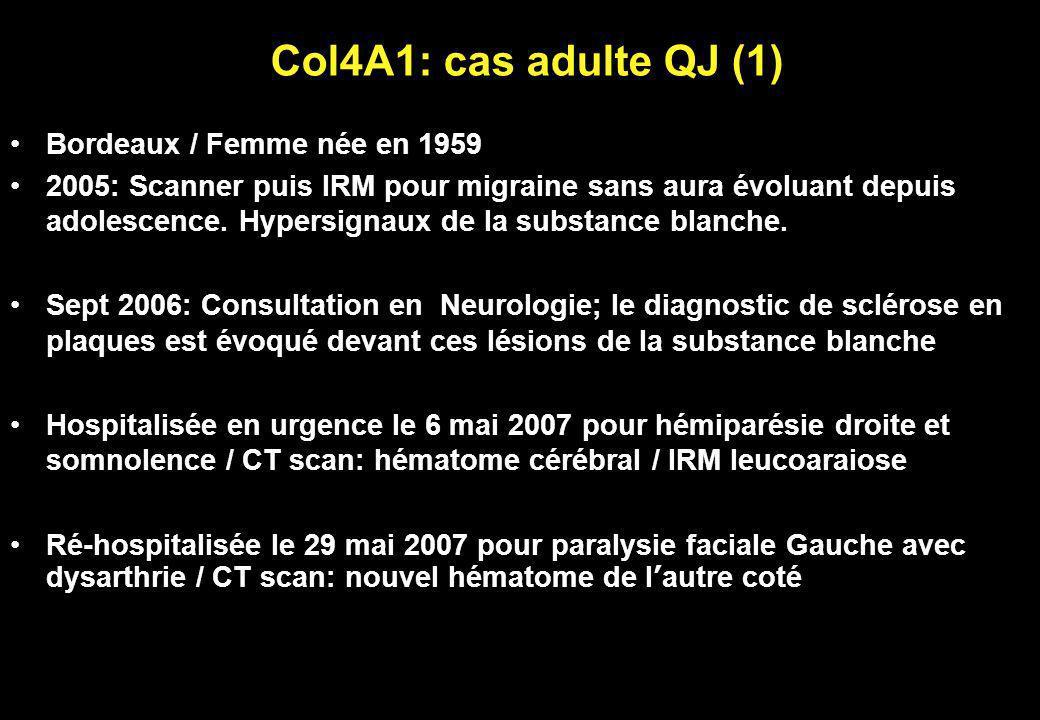 Col4A1: cas adulte QJ (1) Bordeaux / Femme née en 1959 2005: Scanner puis IRM pour migraine sans aura évoluant depuis adolescence. Hypersignaux de la