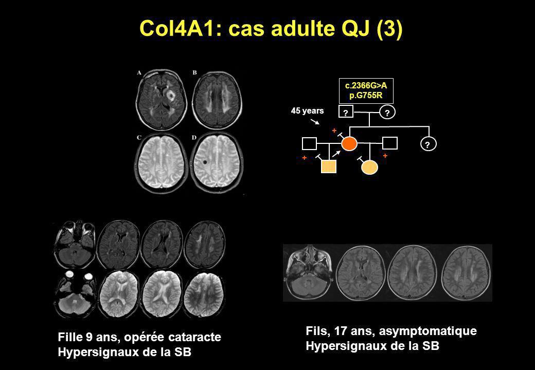 ? ? ? c.2366G>A p.G755R + + + 45 years Col4A1: cas adulte QJ (3) Fille 9 ans, opérée cataracte Hypersignaux de la SB Fils, 17 ans, asymptomatique Hype