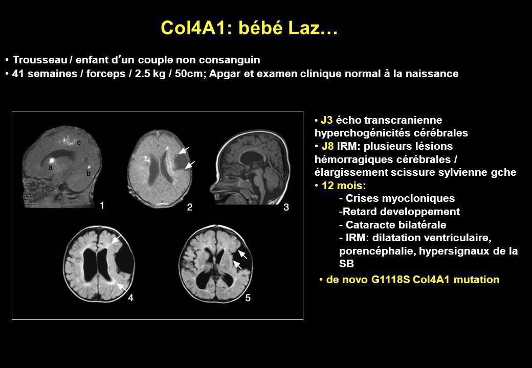 Col4A1: bébé Laz… J3 écho transcranienne hyperchogénicités cérébrales J8 IRM: plusieurs lésions hémorragiques cérébrales / élargissement scissure sylv