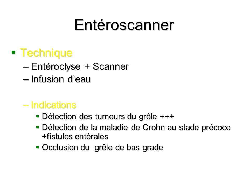 Entéroscanner Technique Technique –Entéroclyse + Scanner –Infusion deau –Indications Détection des tumeurs du grêle +++ Détection des tumeurs du grêle