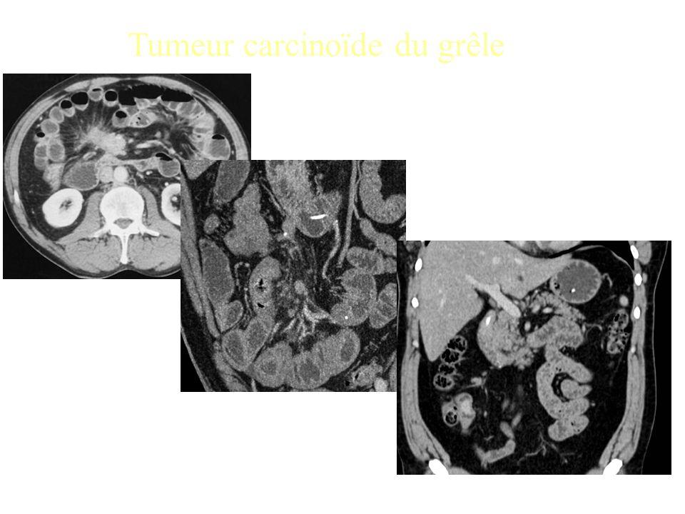Tumeur carcinoïde du grêle