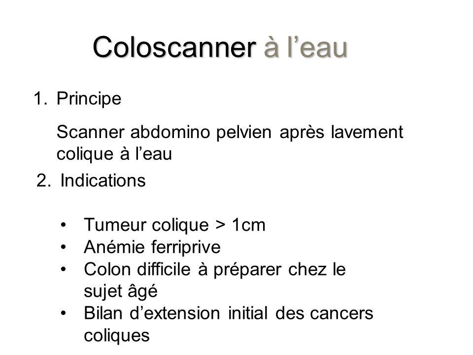 Coloscanner à leau 2. 2.Indications Tumeur colique > 1cm Anémie ferriprive Colon difficile à préparer chez le sujet âgé Bilan dextension initial des c