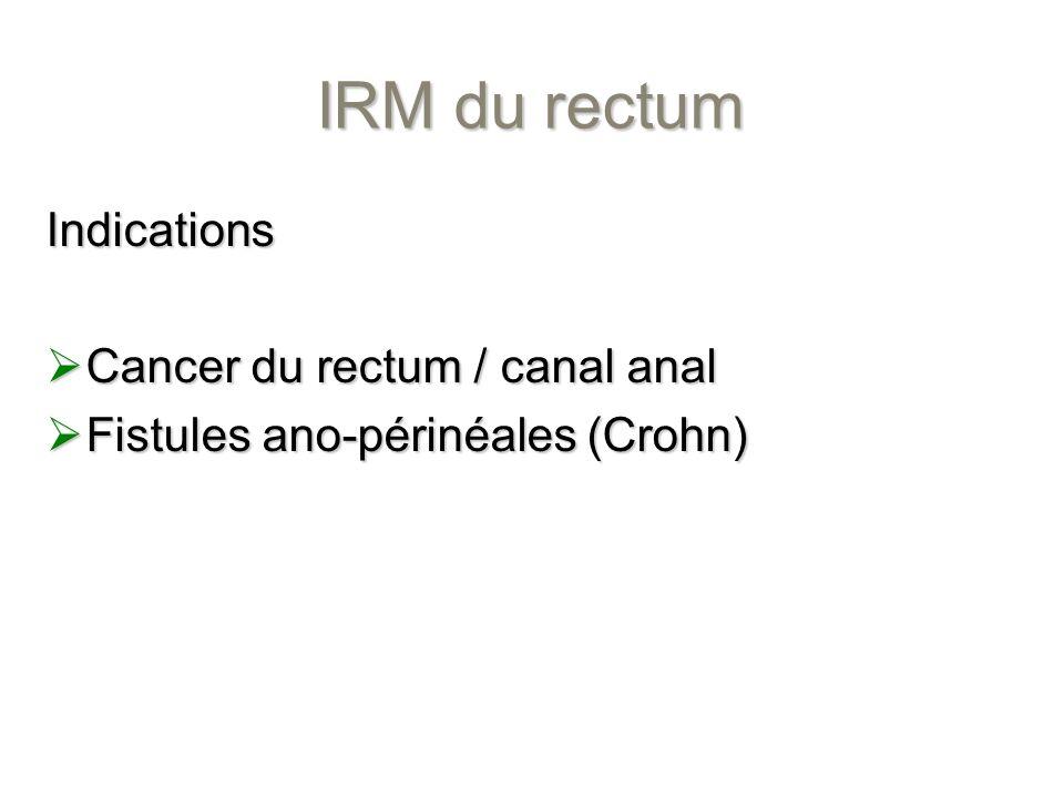 IRM du rectum Indications Cancer du rectum / canal anal Cancer du rectum / canal anal Fistules ano-périnéales (Crohn) Fistules ano-périnéales (Crohn)