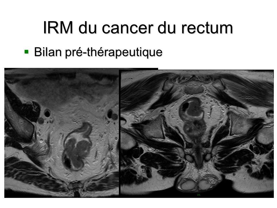 IRM du cancer du rectum Bilan pré-thérapeutique Bilan pré-thérapeutique