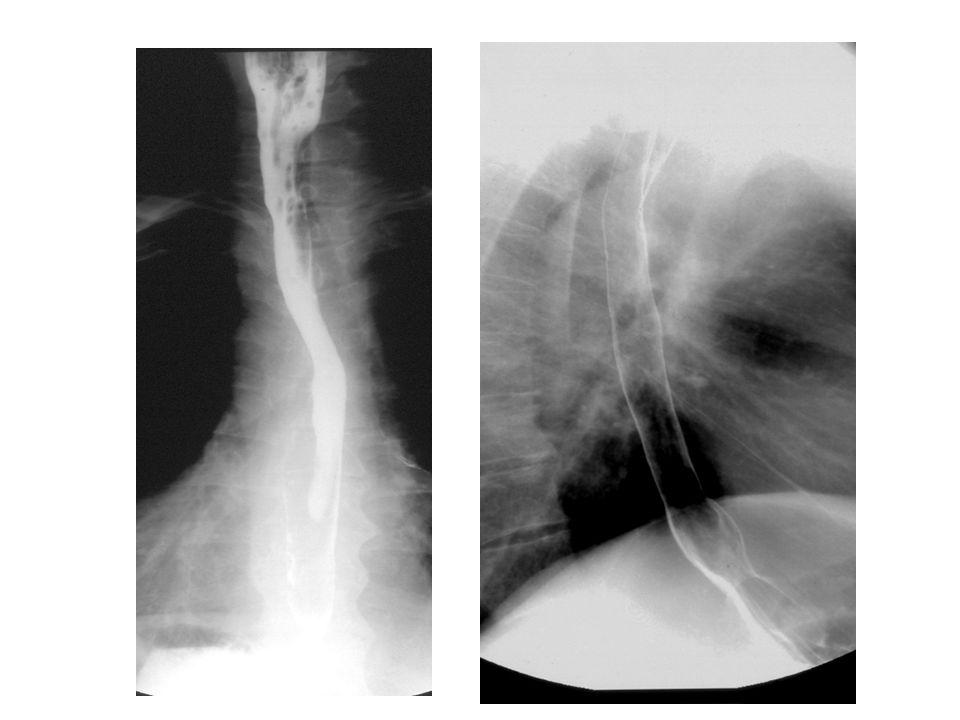 Développement sous-muqueux: tumeur stromale Aspects caractéristiques