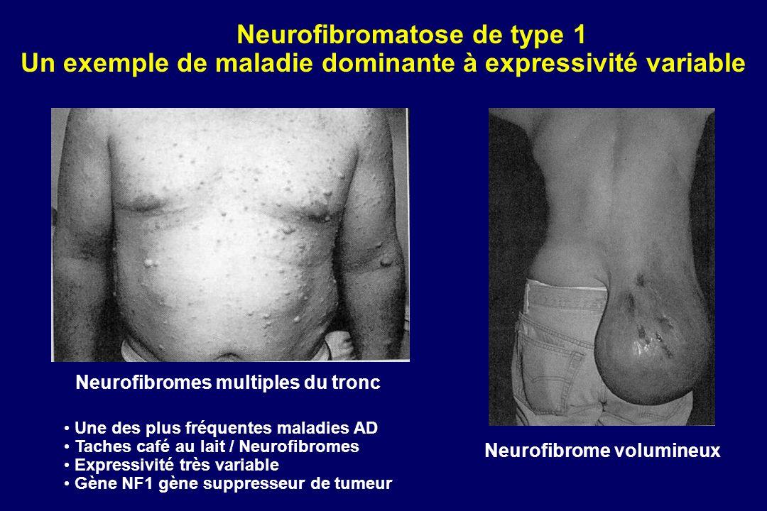 Neurofibromatose de type 1 Un exemple de maladie dominante à expressivité variable Neurofibromes multiples du tronc Neurofibrome volumineux Une des plus fréquentes maladies AD Taches café au lait / Neurofibromes Expressivité très variable Gène NF1 gène suppresseur de tumeur