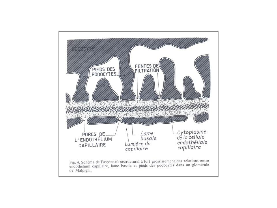 Anomalies de la cellularité 2 Prolifération extracapillaire pure : croissant épithélial –Chambre urinaire occupée par des amas de cellules épithéliales –Croissant circonférentiel ou segmentaire –Cellules inflammatoires, épithéliales de la capsule de Bowman –Du à la rupture de la paroi capillaire glomérulaire, aux protéines sanguines dans lespace urinaire (nécrose) –Evolution vers la fibrose –Exemple : vascularite Prolifération endo et extracapillaire (ex : LED) –Endocapillaire : diffuse le plus souvent –Extracapillaire : plutôt segmentaire et focale –Détermination du pourcentage de glomérules avec croissant