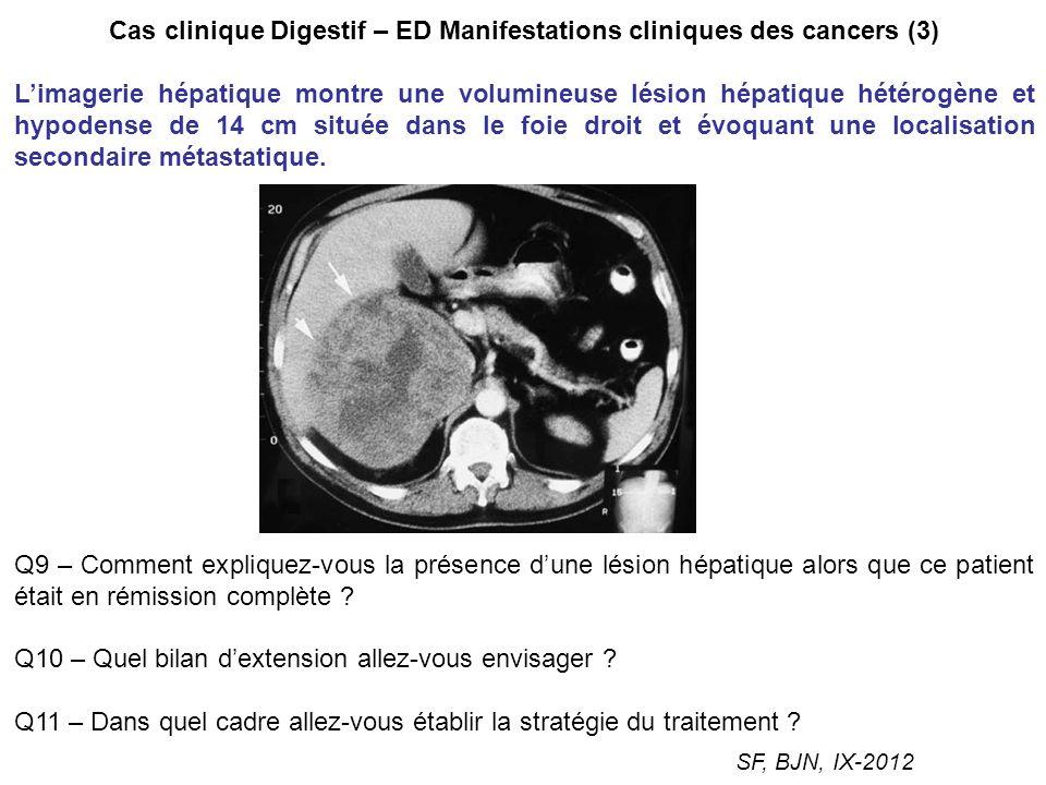 Cas clinique Digestif – ED Manifestations cliniques des cancers (3) Limagerie hépatique montre une volumineuse lésion hépatique hétérogène et hypodens