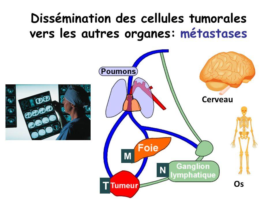 Dissémination des cellules tumorales vers les autres organes: métastases Cerveau Os N T M