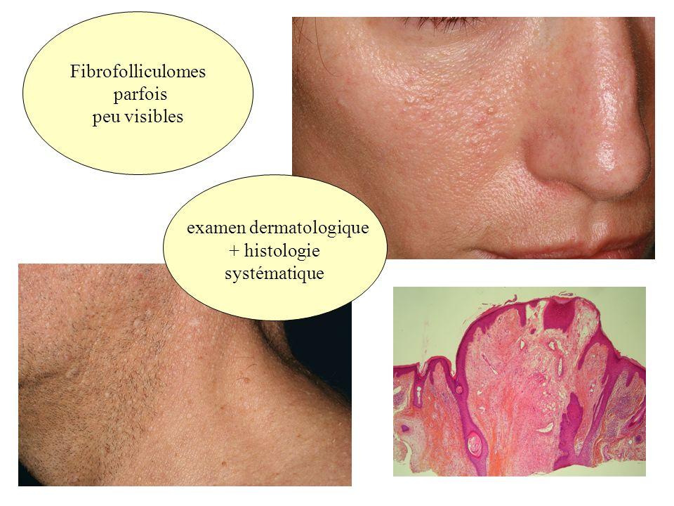 Fibrofolliculomes parfois peu visibles examen dermatologique + histologie systématique