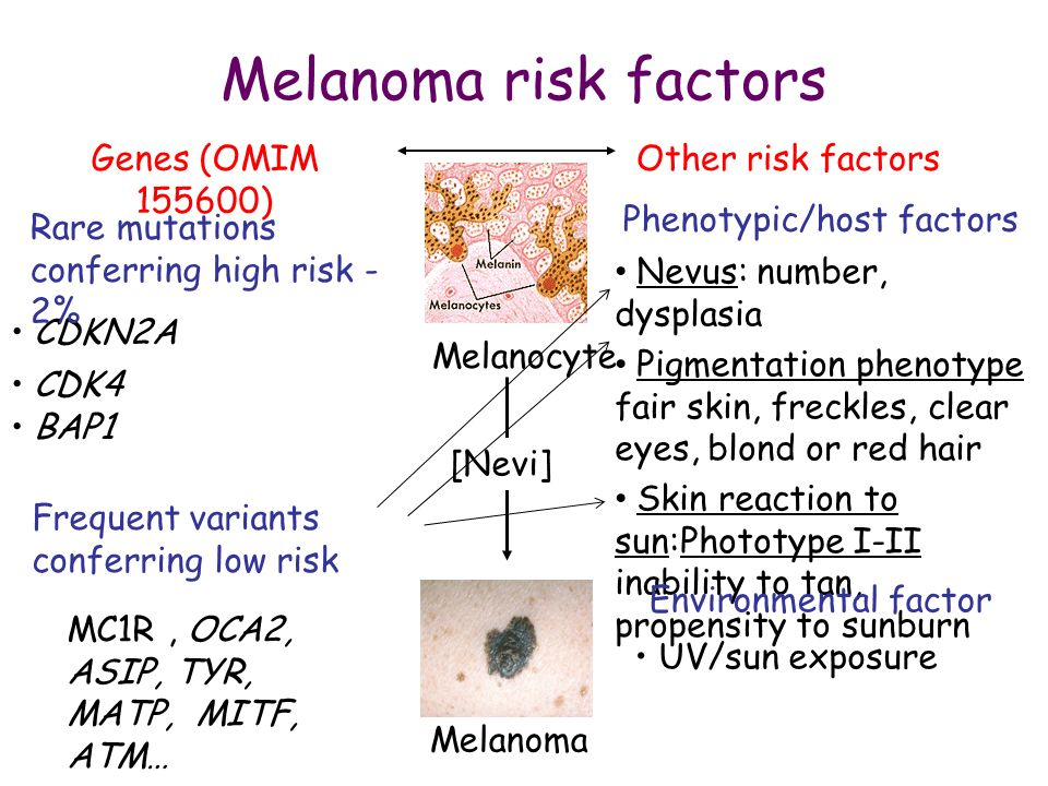 Melanoma risk factors Genes (OMIM 155600) Other risk factors CDKN2A CDK4 BAP1 Nevus: number, dysplasia Pigmentation phenotype fair skin, freckles, cle