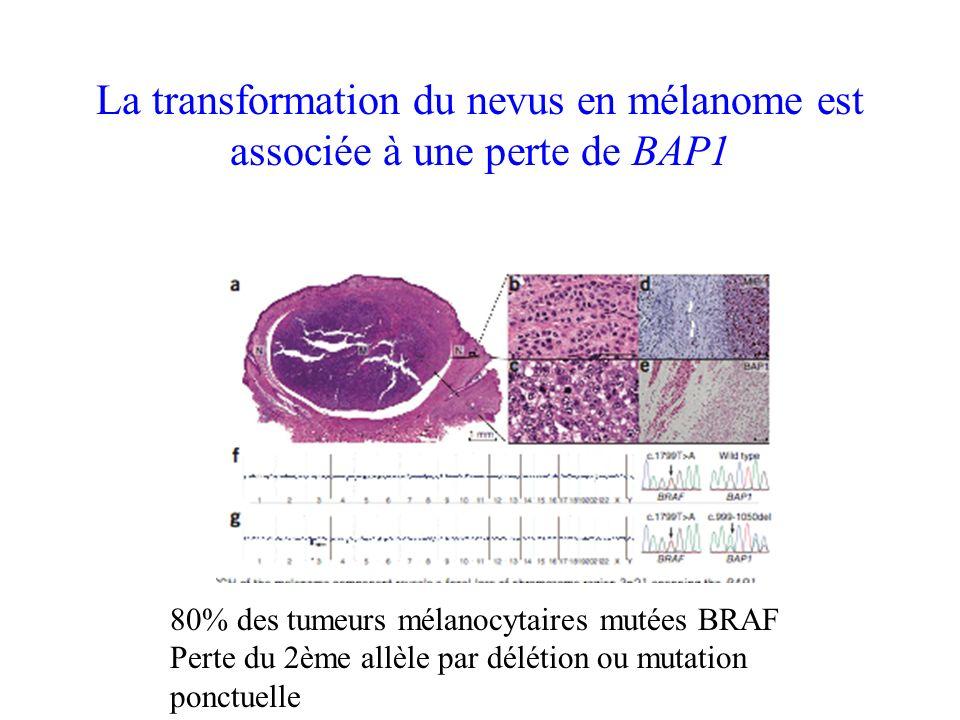 La transformation du nevus en mélanome est associée à une perte de BAP1 80% des tumeurs mélanocytaires mutées BRAF Perte du 2ème allèle par délétion o