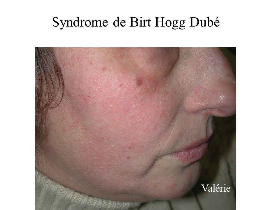 Valérie Syndrome de Birt Hogg Dubé