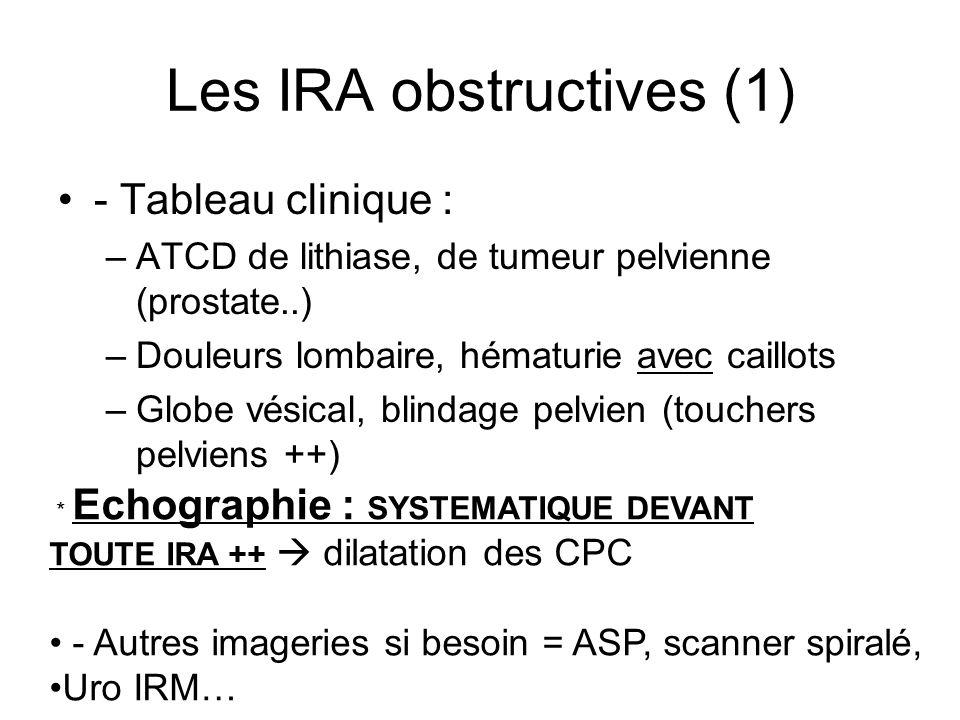 Les IRA obstructives (1) - Tableau clinique : –ATCD de lithiase, de tumeur pelvienne (prostate..) –Douleurs lombaire, hématurie avec caillots –Globe vésical, blindage pelvien (touchers pelviens ++) * Echographie : SYSTEMATIQUE DEVANT TOUTE IRA ++ dilatation des CPC - Autres imageries si besoin = ASP, scanner spiralé, Uro IRM…