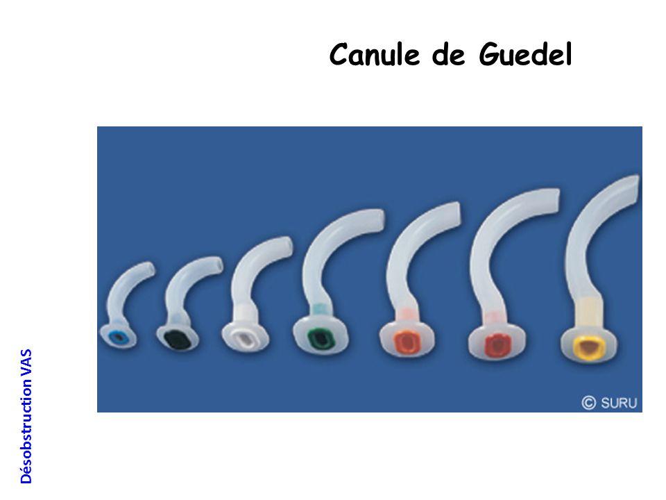 Désobstruction VAS Canule de Guedel