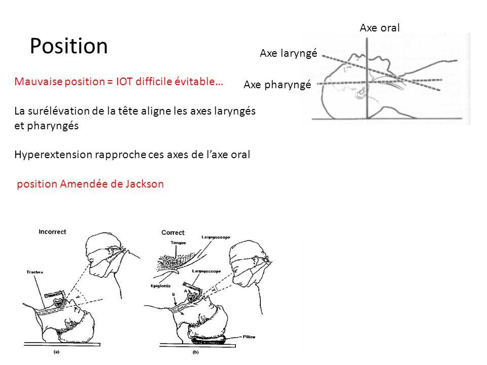 Position Mauvaise position = IOT difficile évitable… La surélévation de la tête aligne les axes laryngés et pharyngés Hyperextension rapproche ces axe