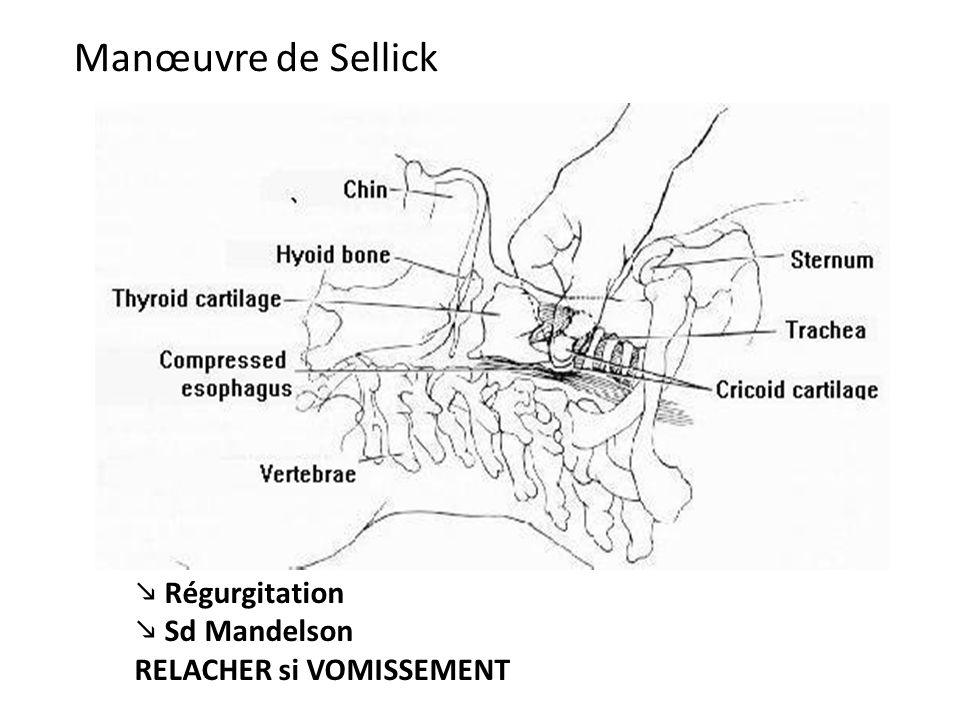 Régurgitation Sd Mandelson RELACHER si VOMISSEMENT Manœuvre de Sellick