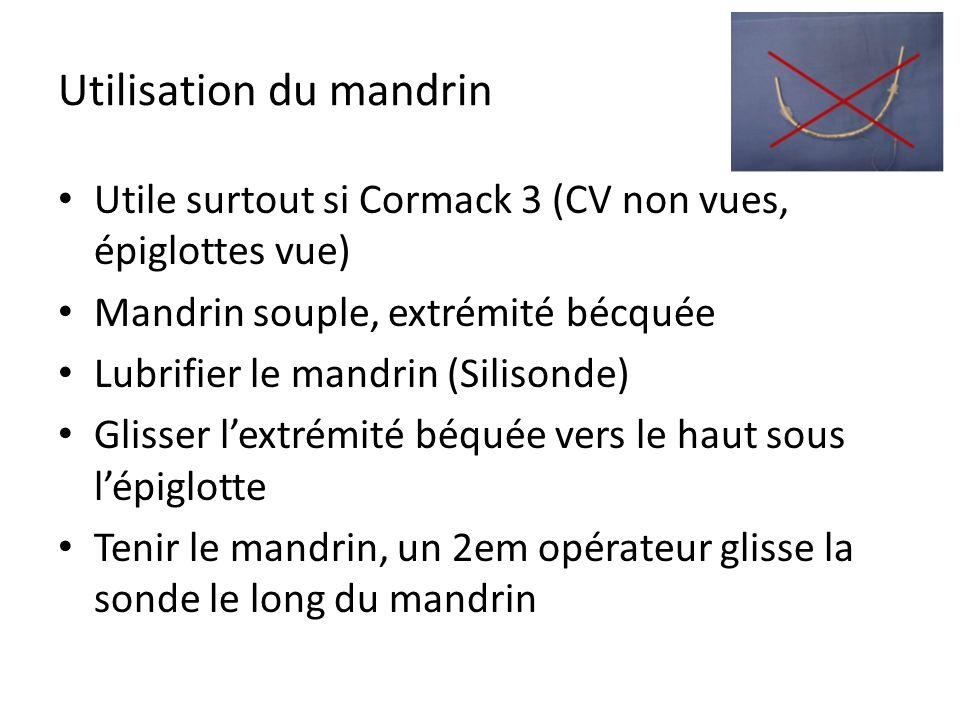 Utilisation du mandrin Utile surtout si Cormack 3 (CV non vues, épiglottes vue) Mandrin souple, extrémité bécquée Lubrifier le mandrin (Silisonde) Gli