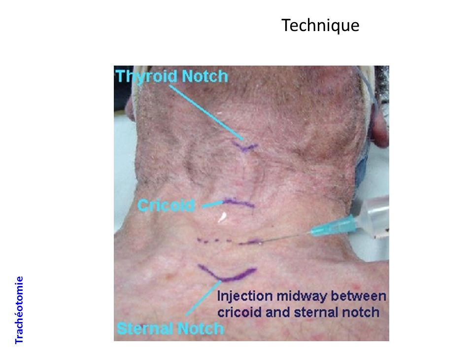 Technique Trachéotomie