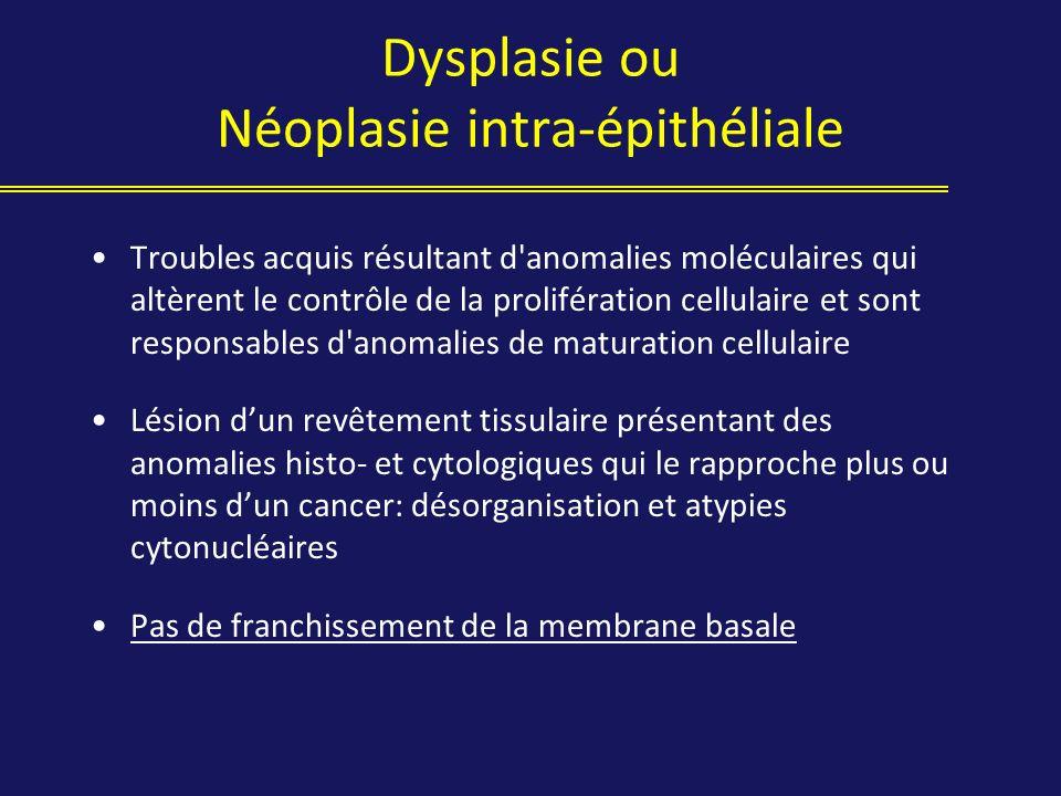 Dysplasie ou Néoplasie intra-épithéliale Troubles acquis résultant d'anomalies moléculaires qui altèrent le contrôle de la prolifération cellulaire et