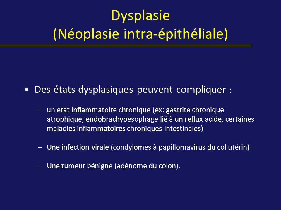 Dysplasie (Néoplasie intra-épithéliale) Des états dysplasiques peuvent compliquer : –un état inflammatoire chronique (ex: gastrite chronique atrophiqu