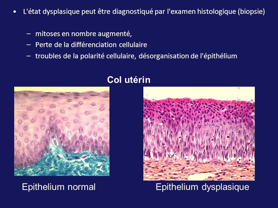 L'état dysplasique peut être diagnostiqué par l'examen histologique (biopsie) –mitoses en nombre augmenté, –Perte de la différenciation cellulaire –tr